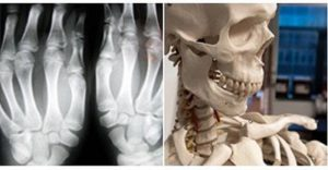 Types of Joints (Bone Joints)